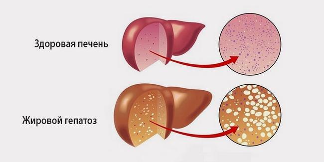 Гепатит а прививка последствия