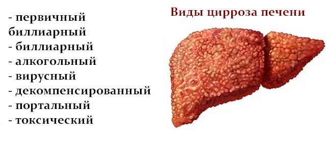 Цирроз печени - первые признаки, причины, симптомы, лечение