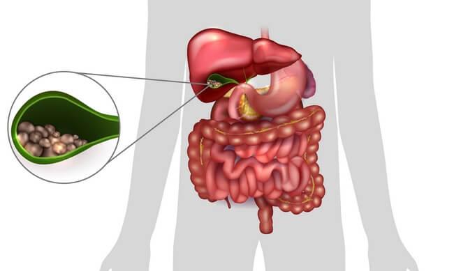 Заболевания желчного пузыря и желчевыводящих путей реферат
