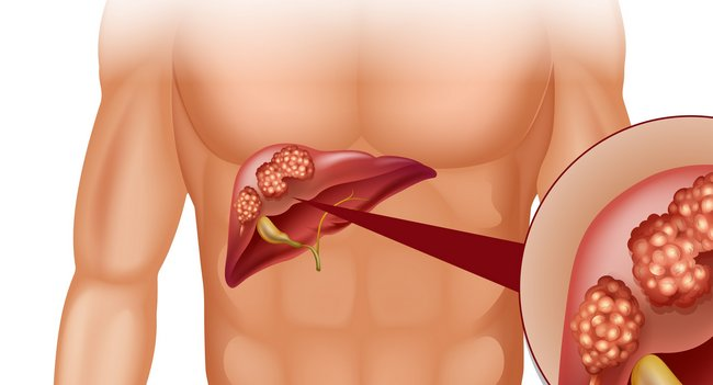Гемангиома печени: виды, причины, симптомы, диагностика, лечение