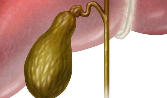 Хронический холецистит причины симптомы диагностика и лечение